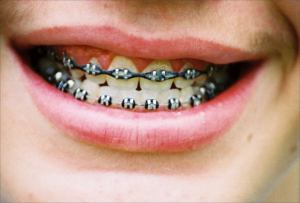 braces via morguefile